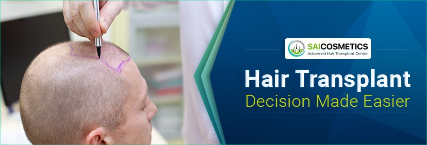Hair Transplant Decision Made Easier