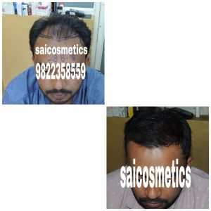 Hair-Transplant-In-A-Nutshell