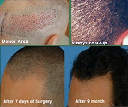 FUE Hair Transplant In Pune