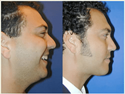 Facial Liposuction Surgery in Pune