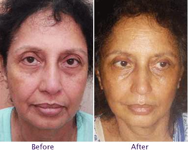 Facial Liposuction Recovery