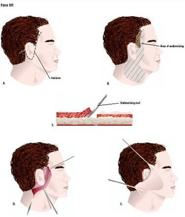 Face Neck and Chin Liposuction