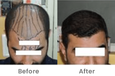 Hair Transplant Clinic in Pune