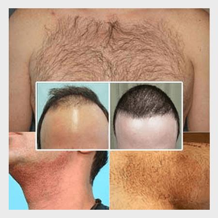 body-hair-transplant-img