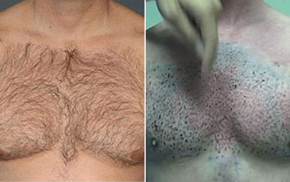 Body Hair Transplant in Pune