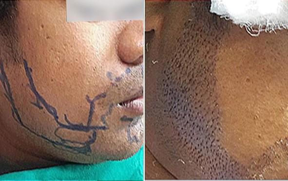 Beard Hair Transplant Center in Pune