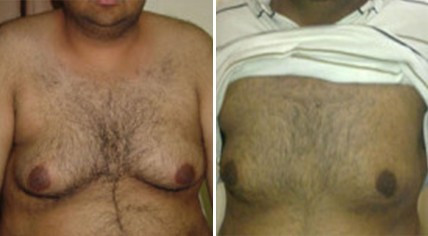 Gynaecomastia Surgery in Pune