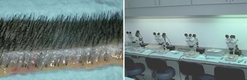 Hair Clinic Pune