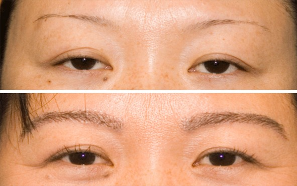 Eyebrow Transplant in Pune