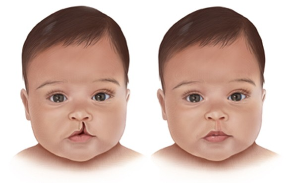 Lip Cleft Pune
