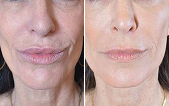 Non-Surgical Face Lifts