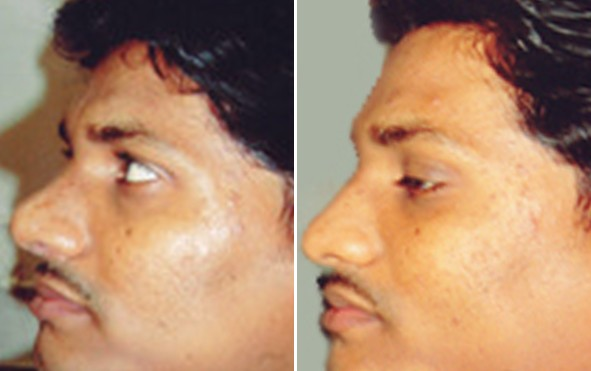 Nose Job Pune
