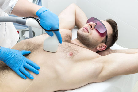 Laser Hair Reduction Surgery