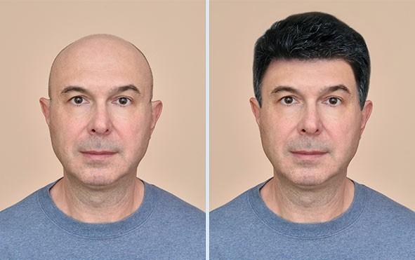 Hair-Transplant-Services Sai Cosmetics results
